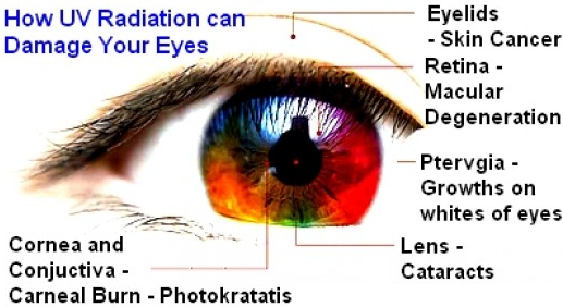 Possible eye problems due to UV radiation
