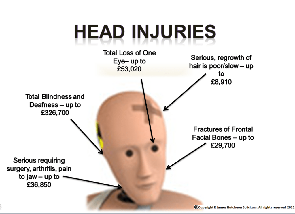 Possible face injuries at work